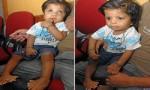 盘点世界最多 印度小男孩竟有14个手指和20个脚趾